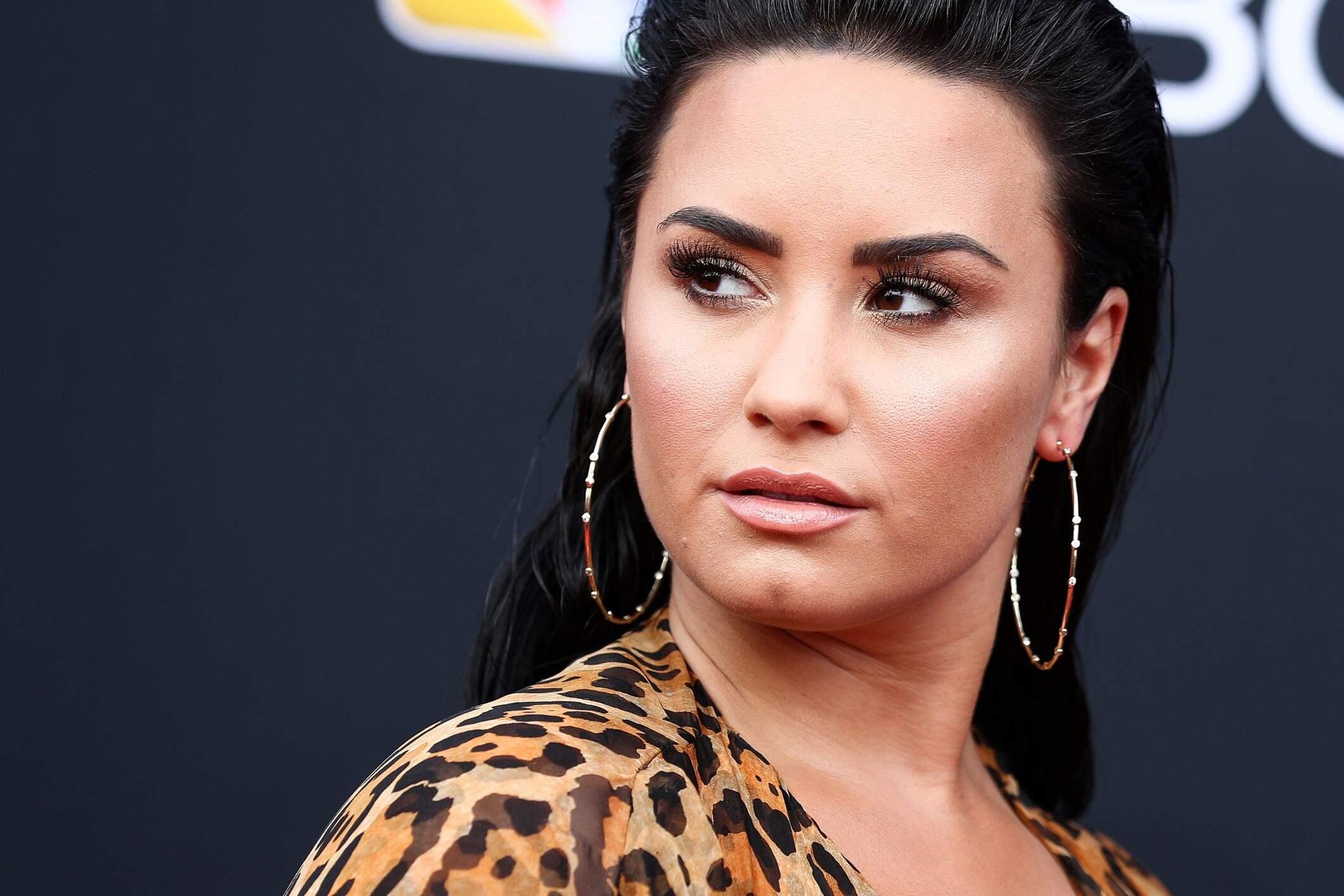Dami Lovato Internação